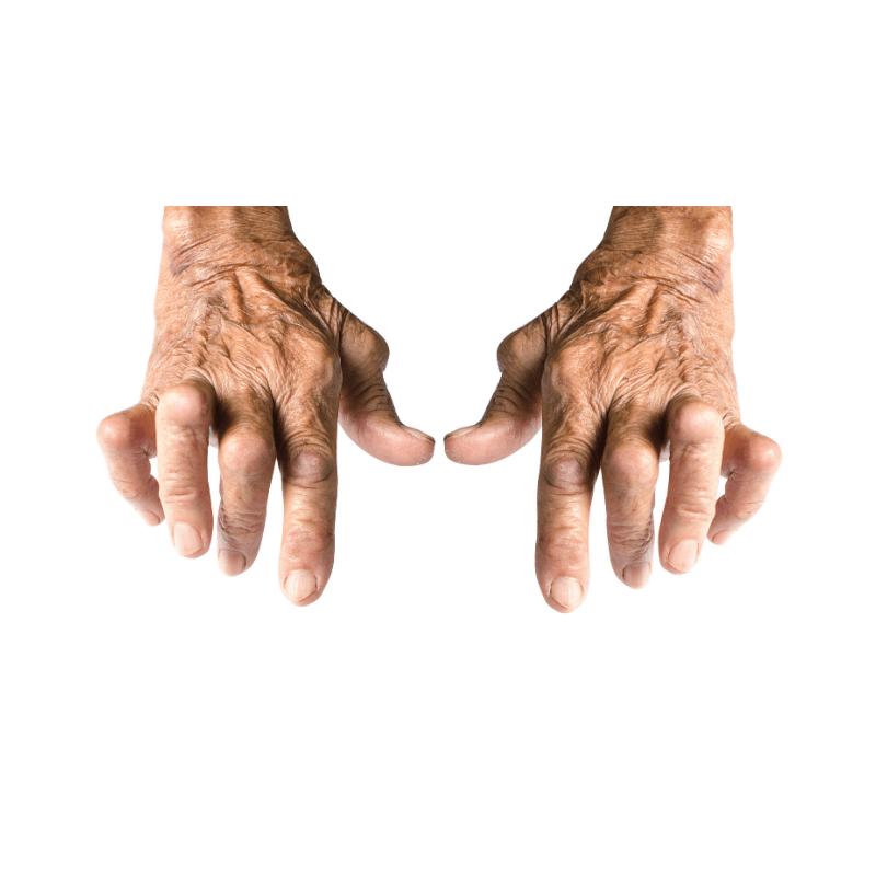 Cannabis Oil for Arthritis